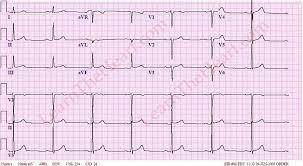 Sinus Bradycardia ECG 2