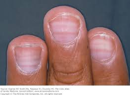 Nail Bed Melanoma by Chapter 190 Normal Nail Variants The Color Atlas Of Family