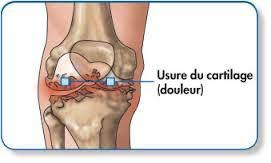 douleurs aux genoux orthes