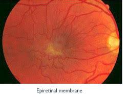 Eye Surgery Cheshire
