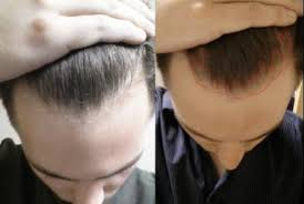 shedding at 11 months on finasteride cause for worry pics