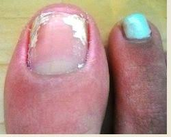 White Spots On Nail Beds by White Spots On Toenails Etopical