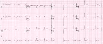 Dr Smith s ECG Blog Beware Automated Interpretations of Atrial