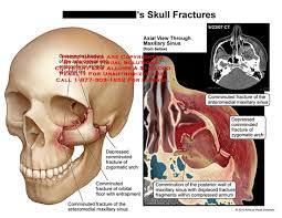 Fracture Orbital Floor Treatment by Medical Exhibits Demonstrative Aids Illustrations And Models