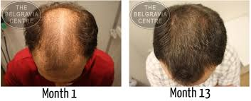 Minoxidil Shedding Phase Duration by Guide To Different Levels Of Hair Regrowth From Treatment