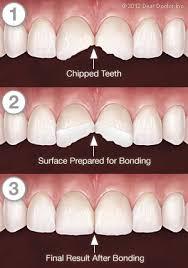 Tooth Bonding Dentist Lynnwood WA