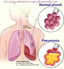 Awesome 7 Fast Acting Home Reme s for Pneumonia
