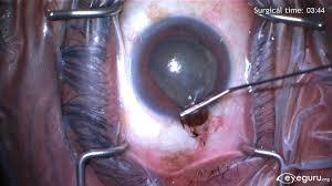 Iris Prolapse During Cataract Surgery