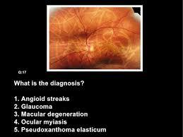 Esophageal Carcinoma Q16 18