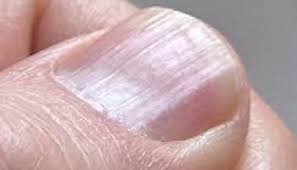 Receding Nail Bed by Ayurvedic Nail Analysis What Do Your Nails Say About Your Health