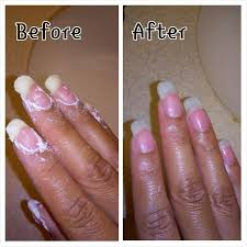 Receding Nail Bed by Best 25 Fungus On Nails Ideas On Pinterest Fungus In Nails