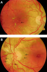 Retinal Telangiectasis And Angioid Streaks