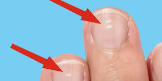 White Spots On Nail Beds by What White Marks On Nails Mean About Health Business Insider