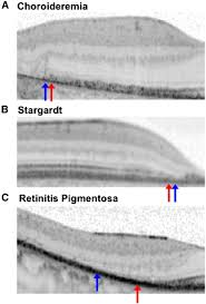 Transition Zones Between Healthy And Diseased Retina In