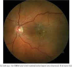 Figure 1 From Epiretinal Membrane With Foveal Herniation