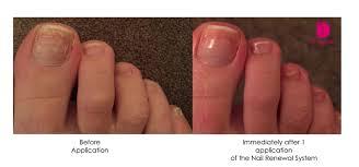 nail news dr dana stern dermatologist nail specialist