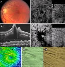 Retinal And Choroidal Folds In Papilledema