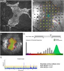 Macular Threshold Sensitivity And AF Imaging In The Left Eye Of A Typical 27 Year