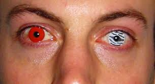 Prescription Halloween Contacts Ireland by Cosmetic Contact Lenses Are Illegal And U0027can Cause Vision Loss