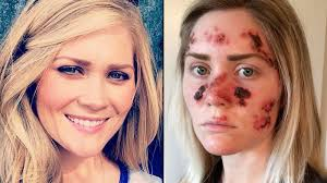 Woman who constantly used tanning beds shares shocking skin cancer