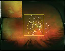 Multifield Nonmydriatic Fundus Photography Compared With Ultrawide Field Imaging