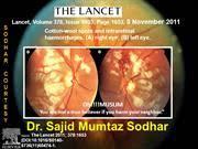 Purtscher Retinopathy Syndrome Dr Sajid Mumtaz Sodh