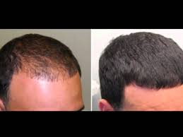 Minoxidil Shedding Phase Duration by Propecia Shedding After 5 Years Clomid Taux Grossesse
