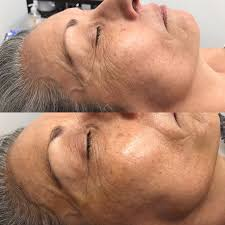 Pumpkin Enzyme Peel Before And After by Best 25 Dermaplaning Before And After Ideas On Pinterest