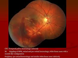 10 ON Temporal Pallor Hemorrhage Inferiorly M Stippling Of RPE Retinal And Pre White Linear Areas With A Scratch Like Configuration