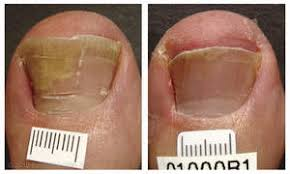 Infected Fingernail Bed by Pinpointe Footlaser Receives Fda Clearance For The Treatment Of