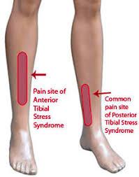 douleur interieur genou course a pied maux de jambes
