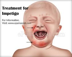 Impetigo Causes Risk Factors Signs Symptoms Treatment Home