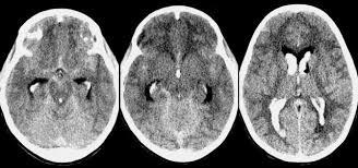 Radiology In Ped Emerg Med Vol 5 Case 7