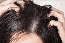 Minoxidil Shedding Phase Pictures by What Causes Hair Loss In Women Hairlossable