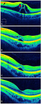 Spontaneously Resolved Purtschers Retinopathy Within 24 Hours Case