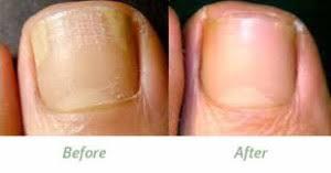 nail fungus removal