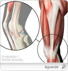 troubles musculosquelettiques du genou tms symptômes