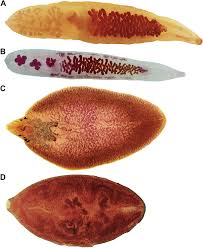 Photos Of Major Adult Liver And Lung Flukes A