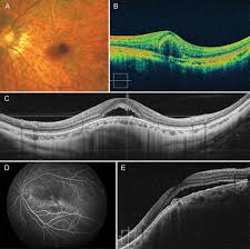 Myopic Choroidal Neovascularisation Current Concepts And Update On
