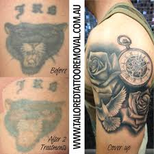 Easy For You To Get Laser Tattoo Removal We Also Make The Process Of Getting Your Old Tattoos Covered Up With Ease Contact Us Today Book In A Free
