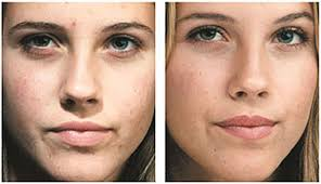 Pumpkin Enzyme Peel Before And After by Before U0026 After Images Dr Tuesday U0027s Aesthetic U0026 Wellness Center