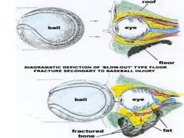 Orbital Floor Fracture Icd 9 by 100 Orbital Floor Fracture Icd 10 Icd 10 Radiology