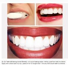 Pinterest DIY teeth whitening Nightmare