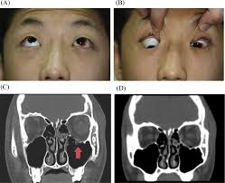 Orbital Floor Fracture With Entrapment by Surgical Outcomes Of Orbital Trapdoor Fracture In Children And