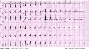 Right Atrial Enlargement ECG Example 2