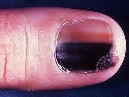 melanoma under the fingernail skin cancer or mole how to tell