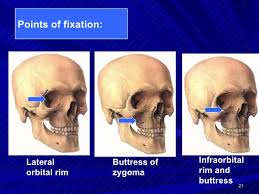 Fracture Orbital Floor Treatment by Zygomatio Frontal Fracture