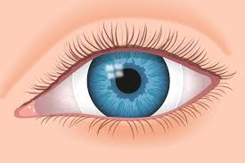 Prescription Halloween Contacts Astigmatism by Scleral Contact Lenses For Keratoconus And Irregular Corneas