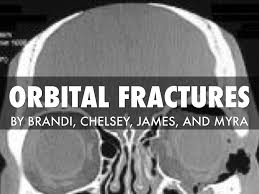 Orbital Floor Fracture Radiology by Orbital Fractures By Chelsey White