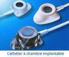 chambre implantable d馭inition cathéter à chambre implantable cadre général à ève aux hug